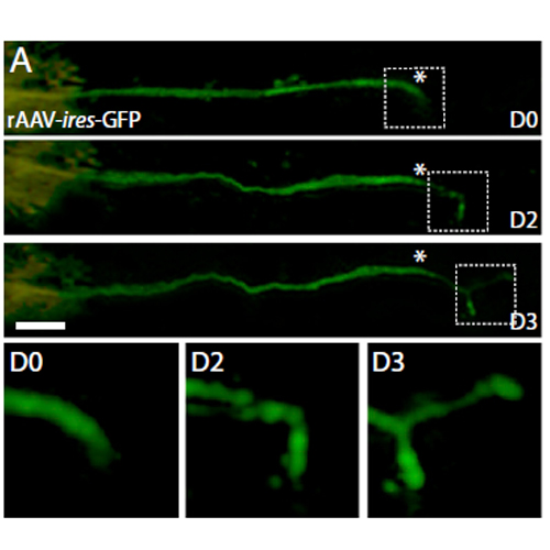 Cipsm In Vivo Imaging Reveals A Phase Specific Role Of